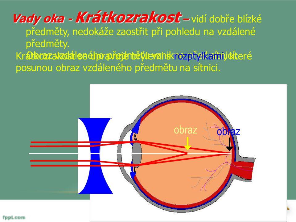 Vady oka - Krátkozrakost – Vady oka - Krátkozrakost – vidí dobře blízké předměty, nedokáže zaostřit při pohledu na vzdálené předměty. Obraz vzdáleného