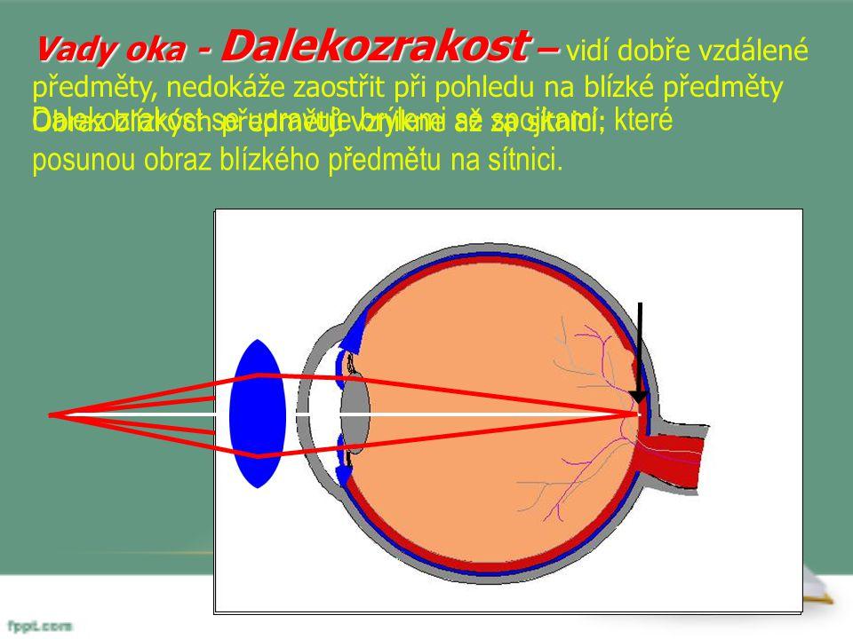 Vady oka - Dalekozrakost – Vady oka - Dalekozrakost – vidí dobře vzdálené předměty, nedokáže zaostřit při pohledu na blízké předměty Obraz blízkých př