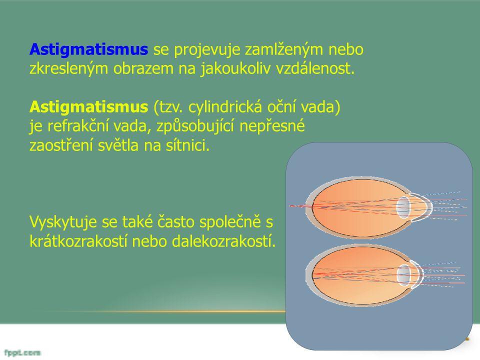 Astigmatismus se projevuje zamlženým nebo zkresleným obrazem na jakoukoliv vzdálenost. Astigmatismus (tzv. cylindrická oční vada) je refrakční vada, z