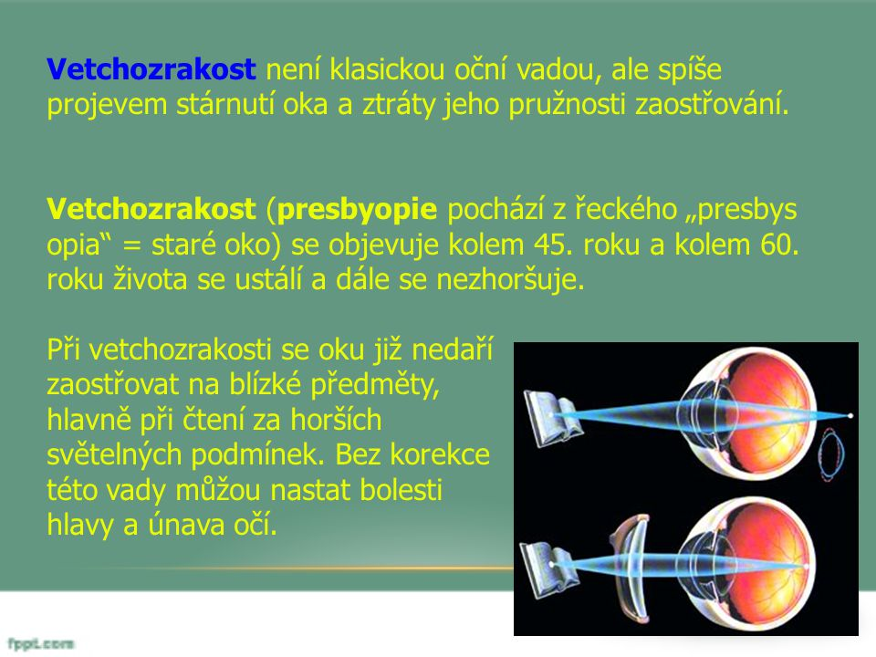 Vetchozrakost není klasickou oční vadou, ale spíše projevem stárnutí oka a ztráty jeho pružnosti zaostřování. Vetchozrakost (presbyopie pochází z řeck
