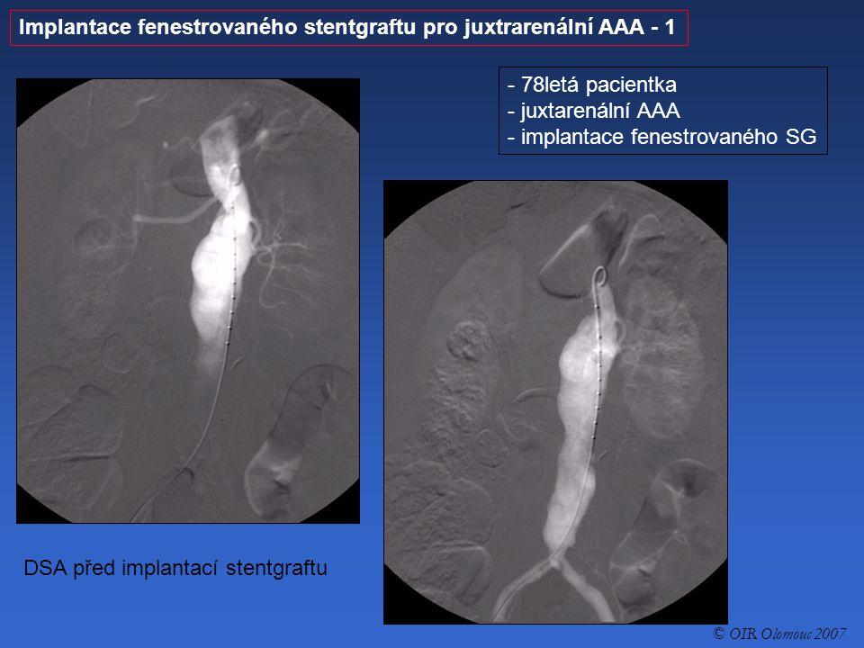 Implantace fenestrovaného stentgraftu pro juxtrarenální AAA - 2 - 78letá pacientka - juxtarenální AAA - implantace fenestrovaného SG DSA po implantaci fenestrovaného uniiliakálního stentgraftu, který je průchodný.