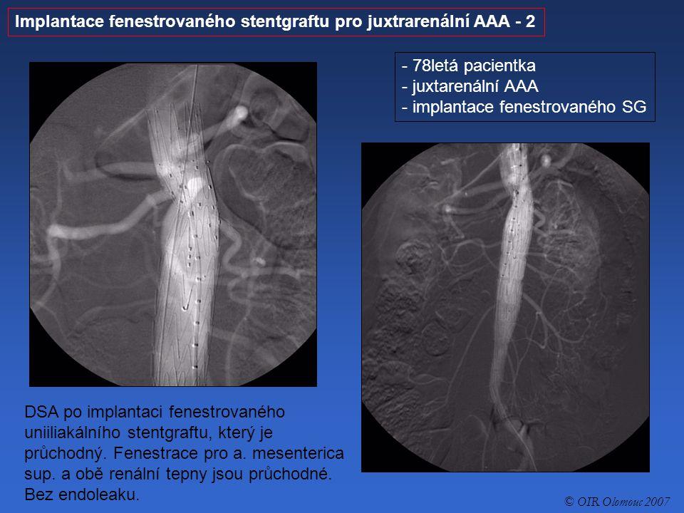 Kompletní perkutánní léčba AAA stentgraftem (perkutánní sutura femorálních tepen) - 1 - 78letý pacient - aneuryzma abdominální aorty IIa - perkutánní implantace stentgraftu DSA abdominální aorty před implantací stentgraftu © OIR Olomouc 2007