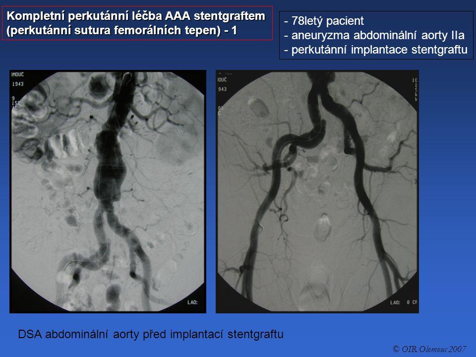 Kompletní perkutánní léčba AAA stentgraftem (perkutánní sutura femorálních tepen) - 2 - 78letý pacient - aneuryzma abdominální aorty IIa - perkutánní implantace stentgraftu Perkutánně naložené stehy na femorální tepny oboustranně © OIR Olomouc 2007