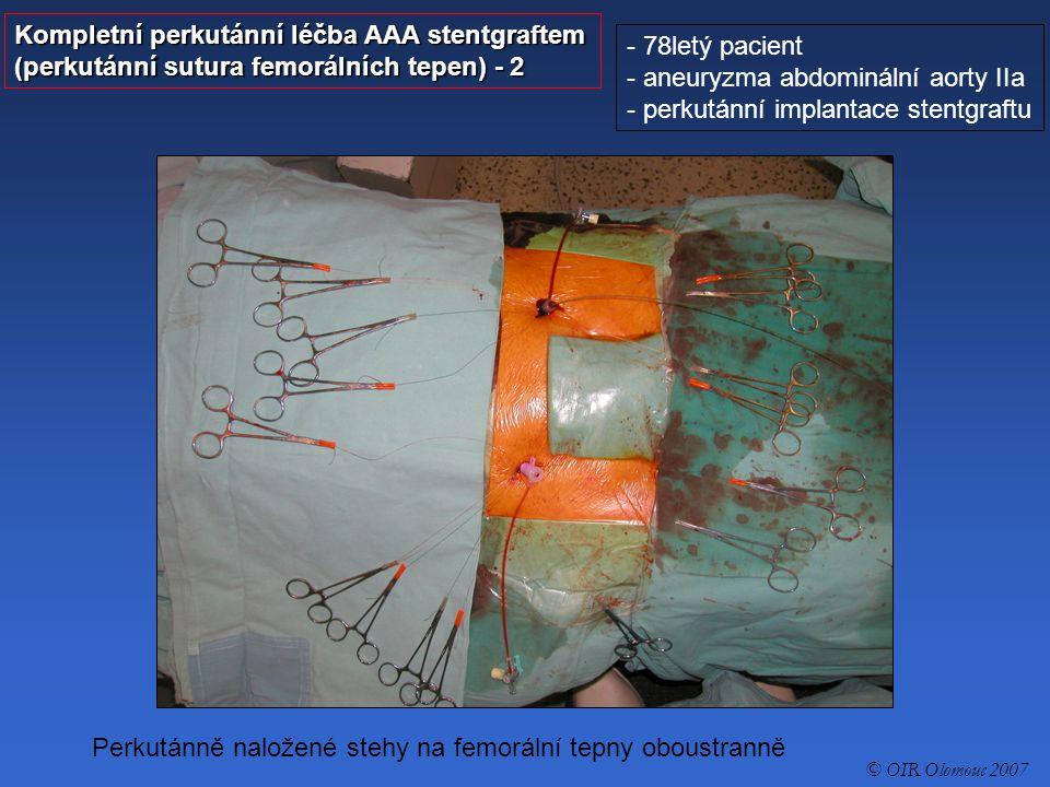 Kompletní perkutánní léčba AAA stentgraftem (perkutánní sutura femorálních tepen) - 3 - 78letý pacient - aneuryzma abdominální aorty IIa - perkutánní implantace stentgraftu Implantace stentgraftu (vpravo stentgraft v zavaděči) © OIR Olomouc 2007