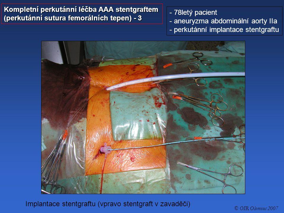 Kompletní perkutánní léčba AAA stentgraftem (perkutánní sutura femorálních tepen) - 4 - 78letý pacient - aneuryzma abdominální aorty IIa - perkutánní implantace stentgraftu © OIR Olomouc 2007