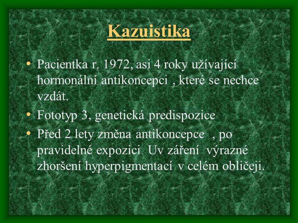 Kazuistika Pacientka r. 1972, asi 4 roky užívající hormonální antikoncepci, které se nechce vzdát. Fototyp 3, genetická predispozice Před 2 lety změna