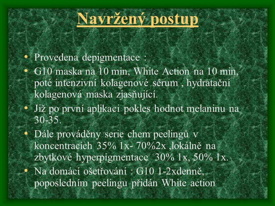 Navržený postup Provedena depigmentace : G10 maska na 10 min, White Action na 10 min, poté intenzivní kolagenové sérum, hydratační kolagenová maska zjasňující.