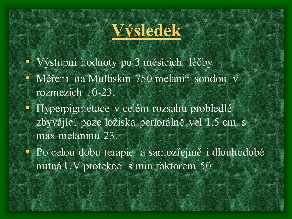 Výsledek Výstupní hodnoty po 3 měsících léčby Měření na Multiskin 750 melanin sondou v rozmezích 10-23. Hyperpigmetace v celém rozsahu probledlé zbyvá