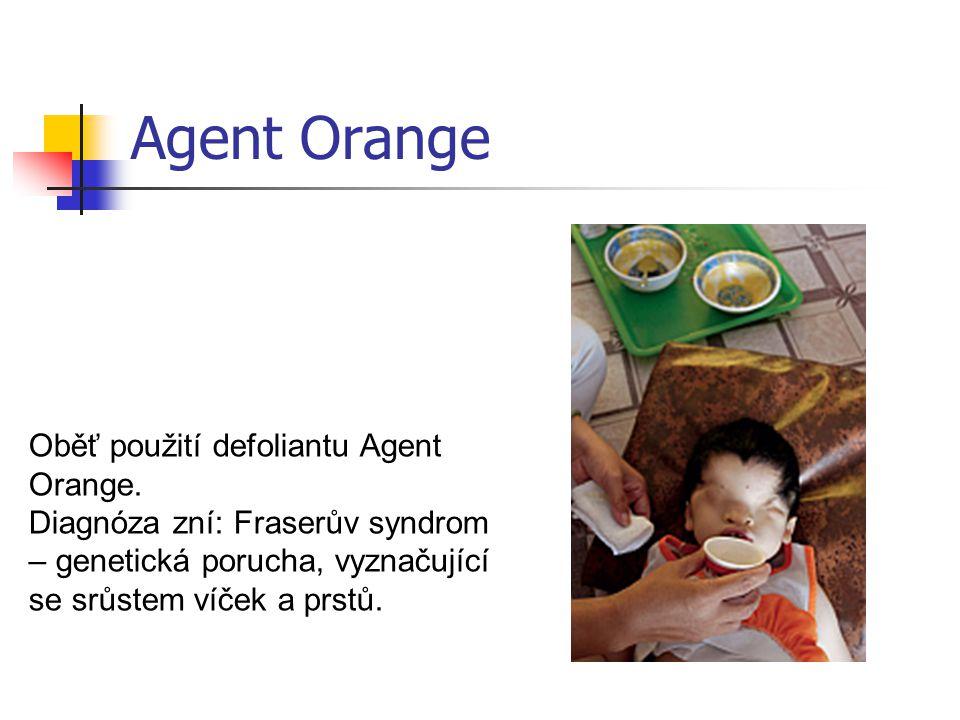 Oběť použití defoliantu Agent Orange. Diagnóza zní: Fraserův syndrom – genetická porucha, vyznačující se srůstem víček a prstů. Agent Orange
