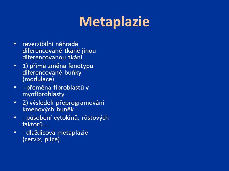 Metaplazie reverzibilní náhrada diferencované tkáně jinou diferencovanou tkání 1) přímá změna fenotypu diferencované buňky (modulace) - přeměna fibrob