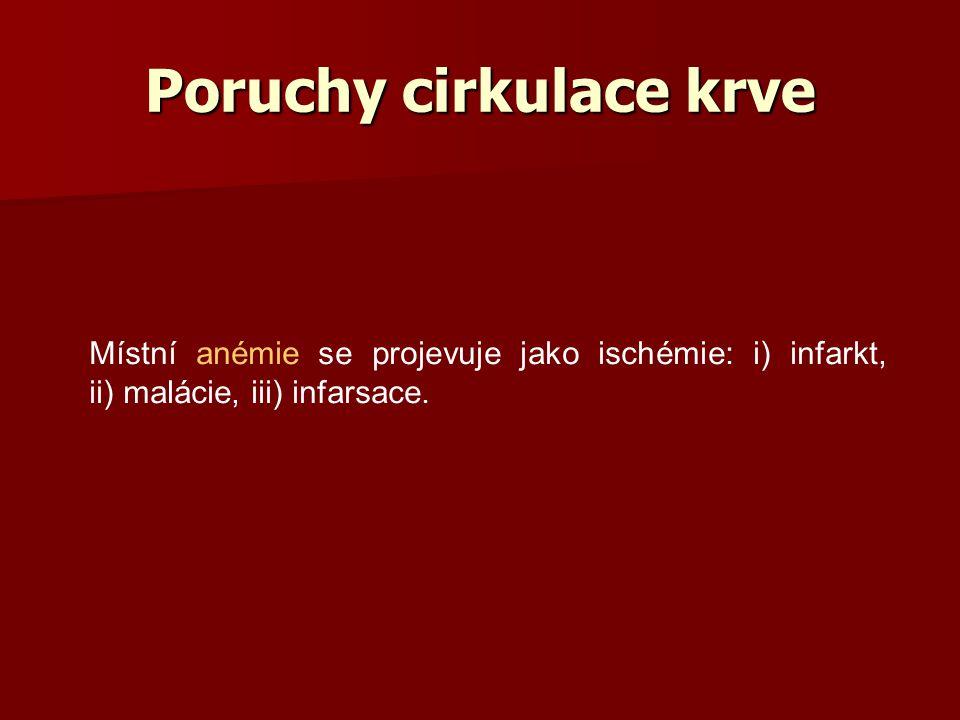 Poruchy cirkulace krve Místní anémie se projevuje jako ischémie: i) infarkt, ii) malácie, iii) infarsace.