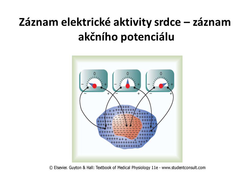 Záznam elektrické aktivity srdce – záznam akčního potenciálu