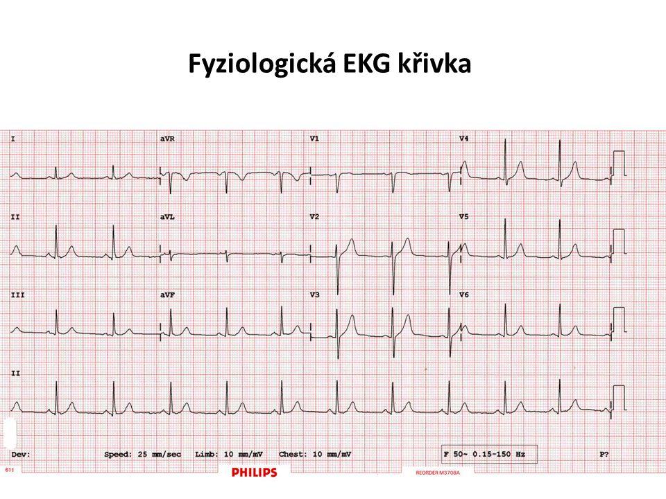Fyziologická EKG křivka