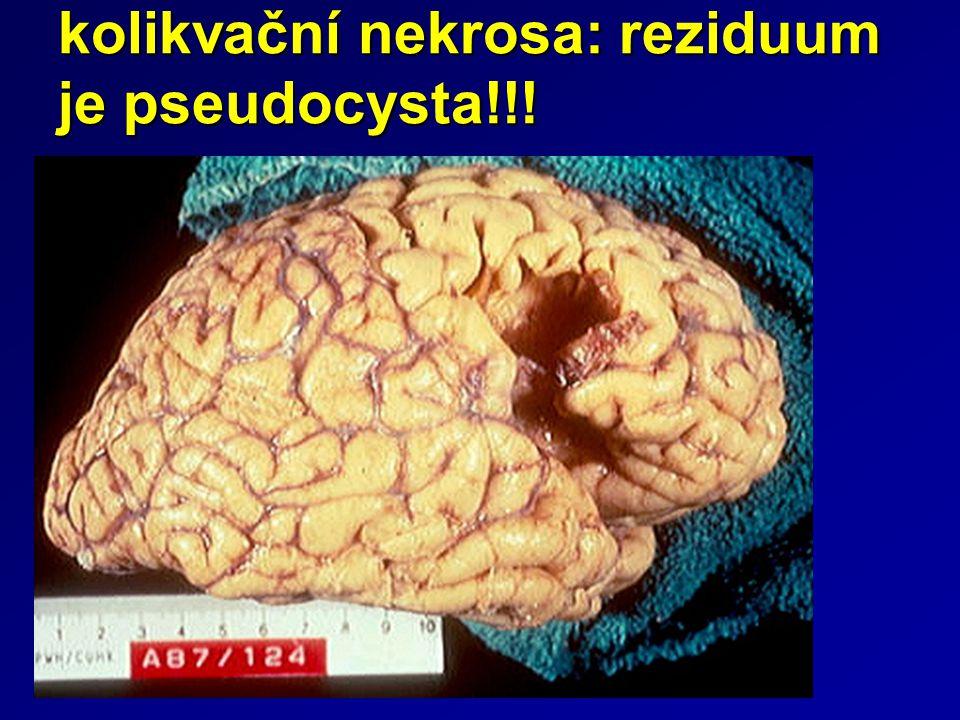 kolikvační nekrosa: reziduum je pseudocysta!!!
