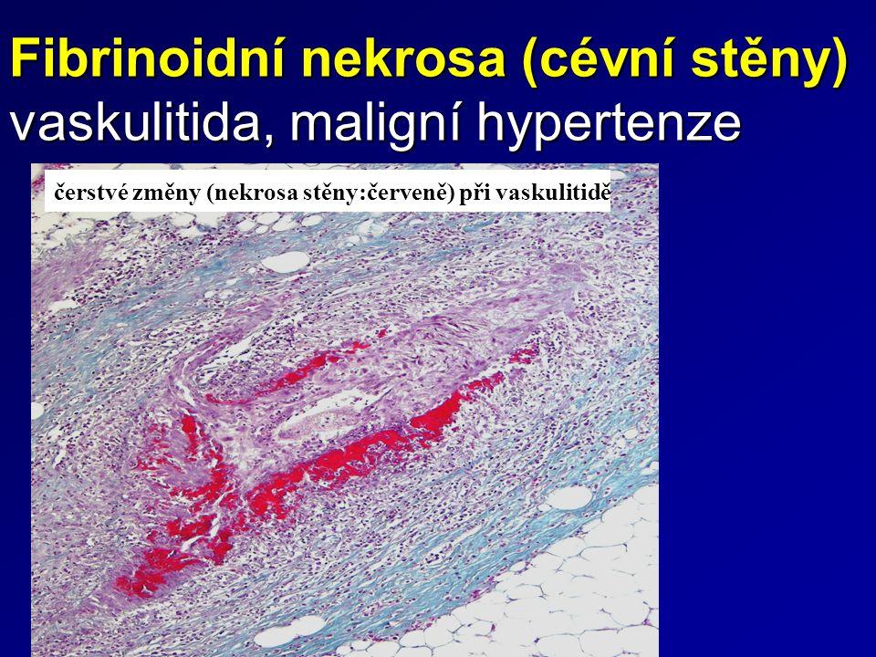 Fibrinoidní nekrosa (cévní stěny) vaskulitida, maligní hypertenze čerstvé změny (nekrosa stěny:červeně) při vaskulitidě