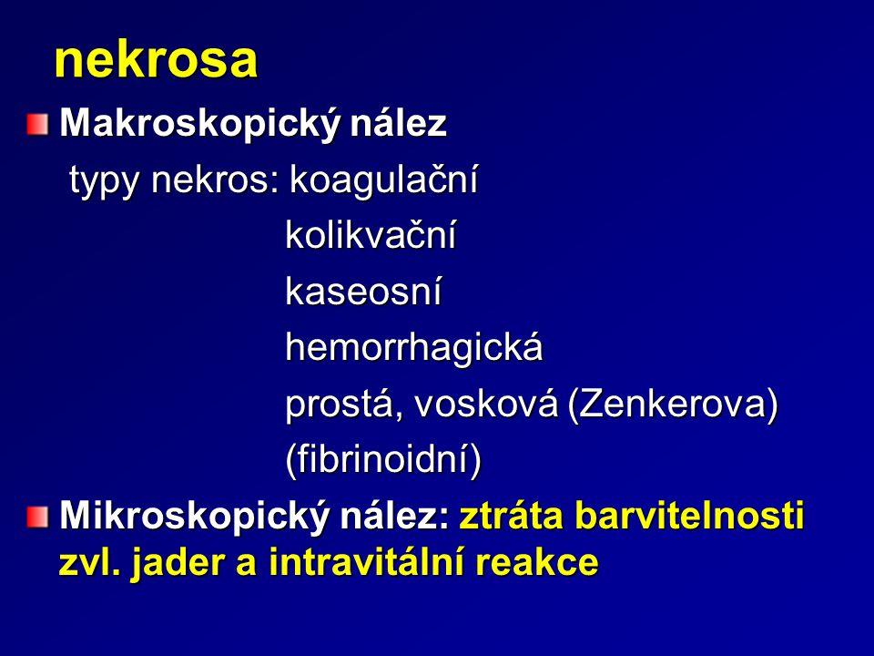 nekrosa Makroskopický nález typy nekros: koagulační typy nekros: koagulační kolikvační kolikvační kaseosní kaseosní hemorrhagická hemorrhagická prostá