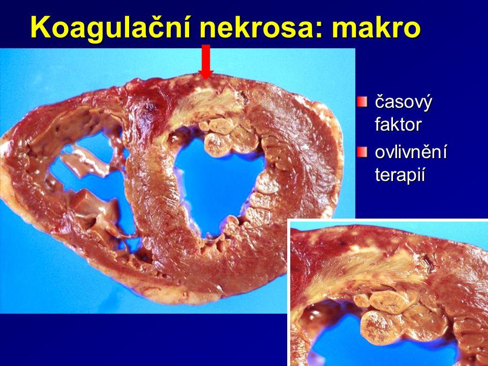 Koagulační nekrosa: makro časový faktor ovlivnění terapií