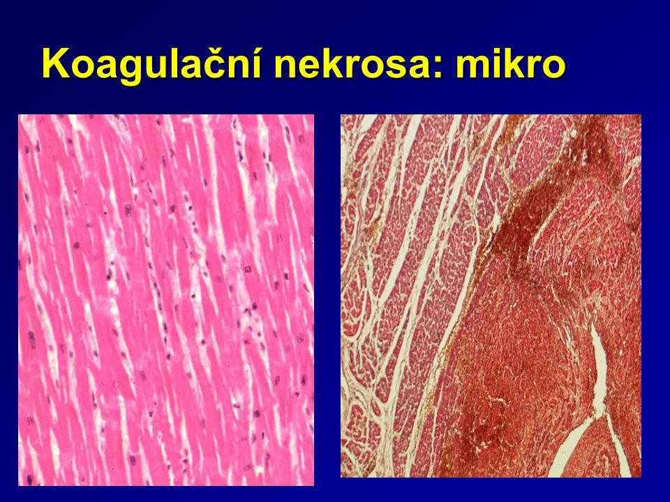 Koagulační nekrosa: mikro
