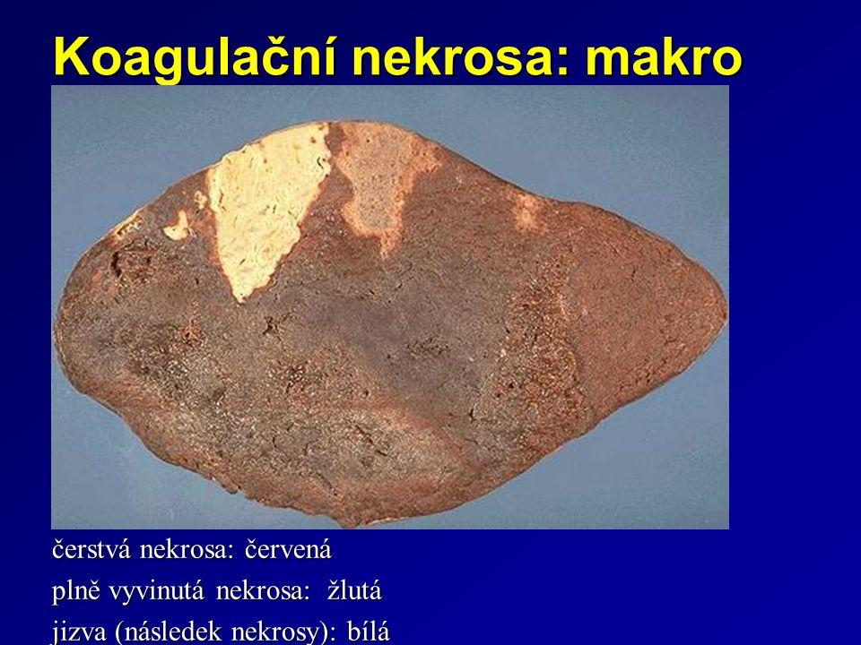 Koagulační nekrosa: makro čerstvá nekrosa: červená plně vyvinutá nekrosa: žlutá jizva (následek nekrosy): bílá