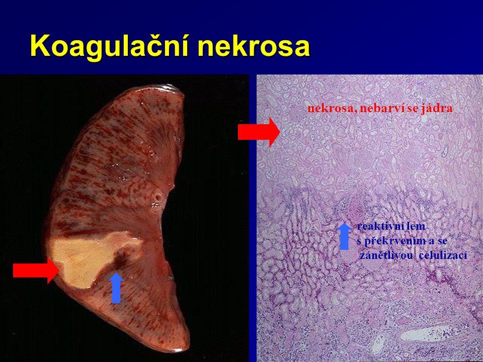 Koagulační nekrosa nekrosa, nebarví se jádra reaktivní lem s překrvením a se zánětlivou celulizací