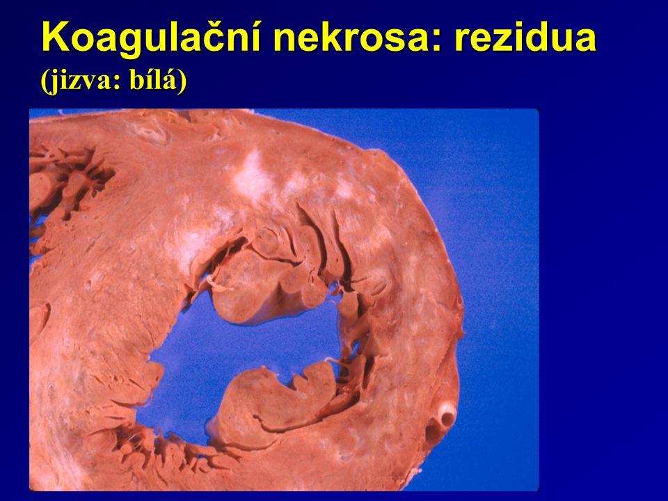 Koagulační nekrosa: rezidua (jizva: bílá)