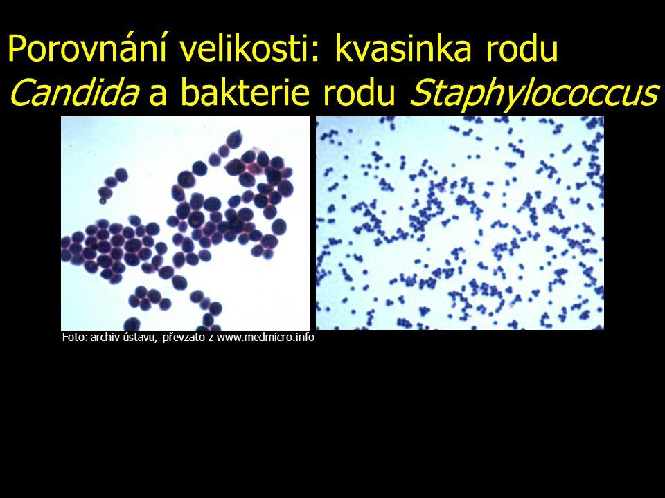Porovnání velikosti: kvasinka rodu Candida a bakterie rodu Staphylococcus Foto: archiv ústavu, převzato z www.medmicro.info