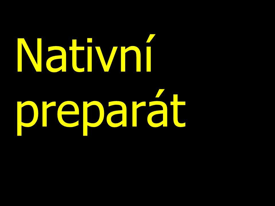 Nativní preparát