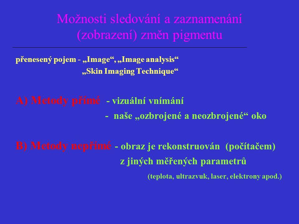 Přímé metody pozorování Fluorescence - Woodova lampa vitiligo, ephelides, naevi, lentigines, modrý naevus Bioluminiscence resp.