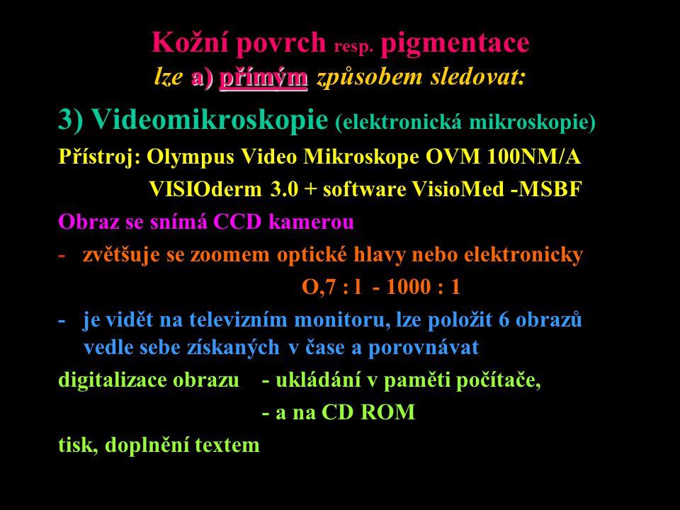 Ad 3) Videomikroskopie (elektronická mikroskopie) Dále umožňuje: - položit 6-20 obrazů vedle sebe získaných v čase a jejich srovnávání - digitalizavaný obraz ukládát v paměti počítače, na CD ROM, (videomagnetofon) - barevný tisk, obrázků a doplnění textem, korekce barev - pozorování v polarizovaném světle a s imersním olejem - edukace a posílání obrazů na délku (teledermatologie) - matematickou analýzu nasnímaných obrazů.