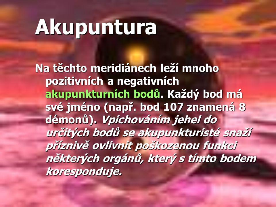 Akupuntura Na těchto meridiánech leží mnoho pozitivních a negativních akupunkturních bodů. Každý bod má své jméno (např. bod 107 znamená 8 démonů). Vp