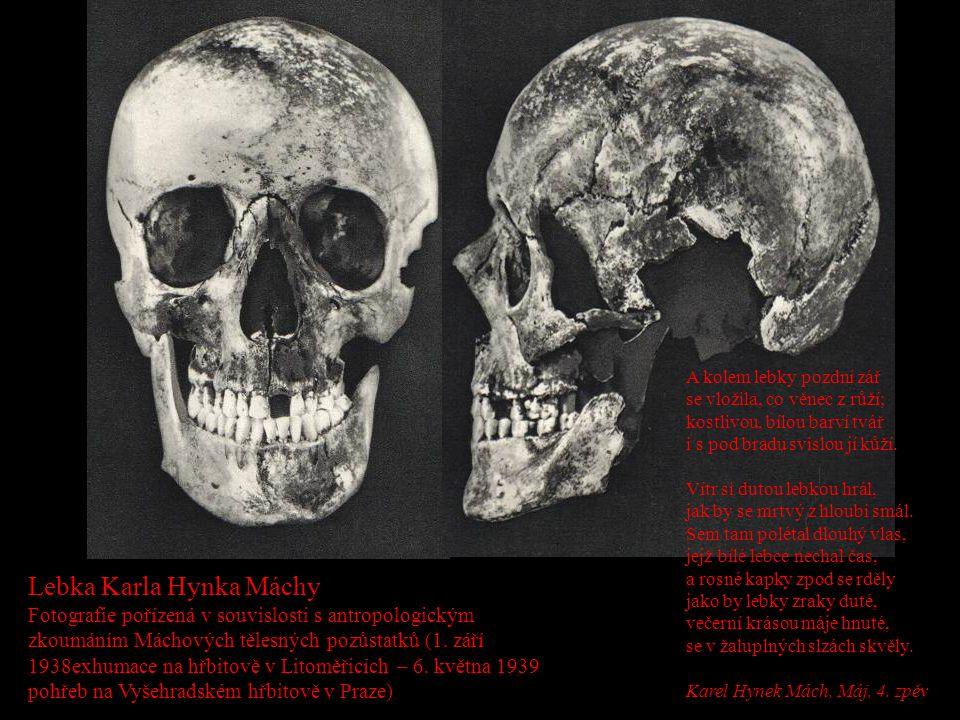 Lebka Karla Hynka Máchy Fotografie pořízená v souvislosti s antropologickým zkoumáním Máchových tělesných pozůstatků (1. září 1938exhumace na hřbitově