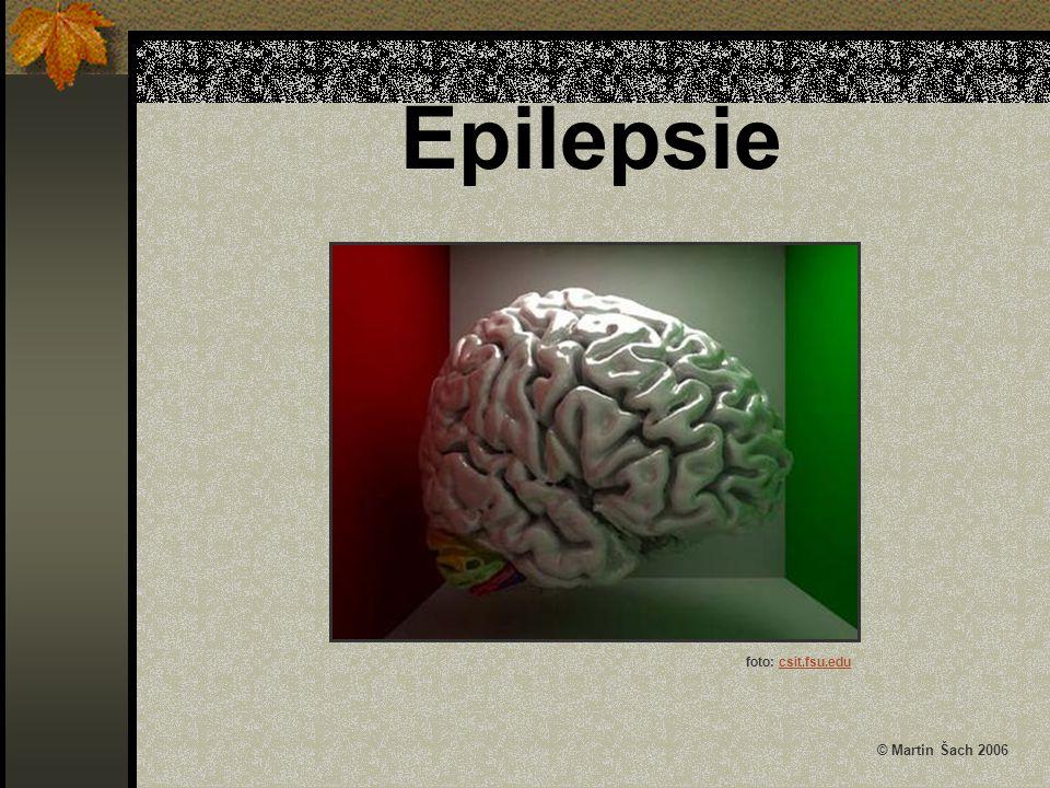 Epilepsie © Martin Šach 2006 foto: csit.fsu.edu