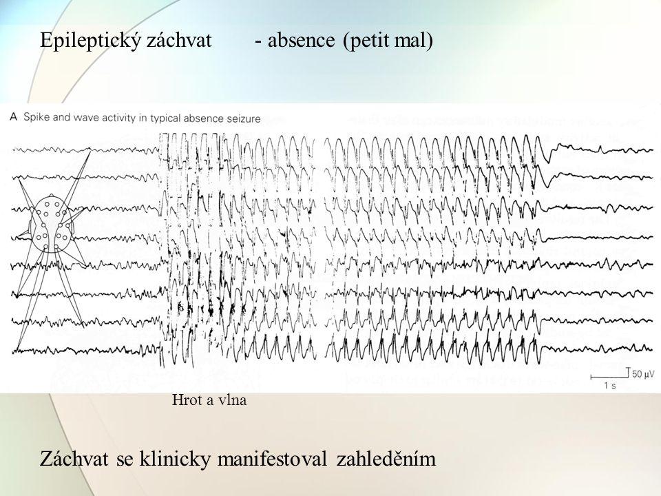 Epileptický záchvat Hrot a vlna Záchvat se klinicky manifestoval zahleděním - absence (petit mal)