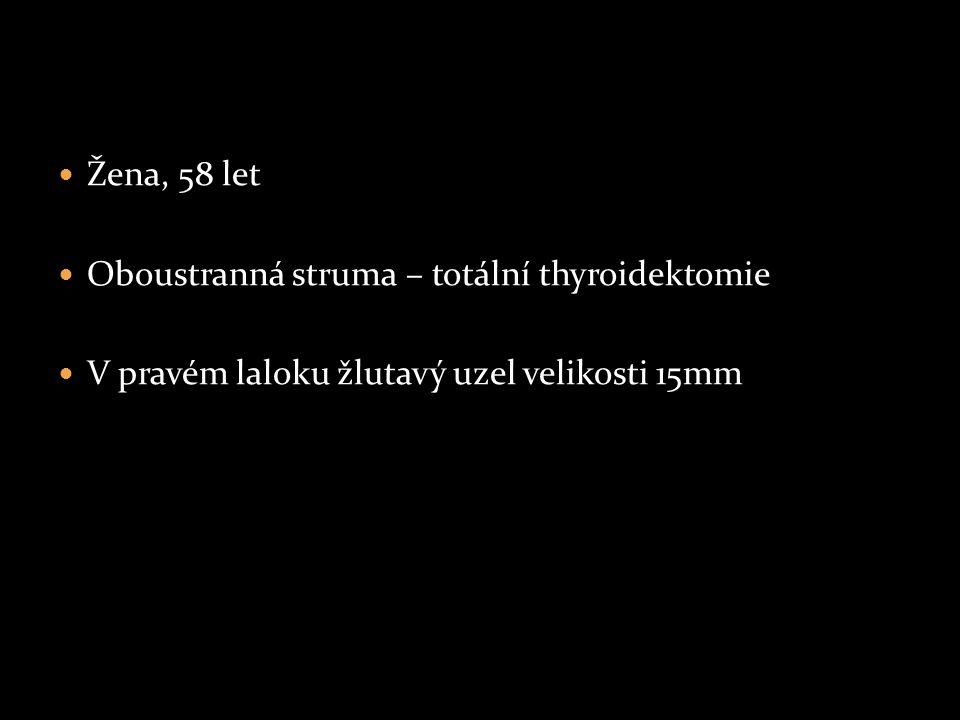 Žena, 58 let Oboustranná struma – totální thyroidektomie V pravém laloku žlutavý uzel velikosti 15mm