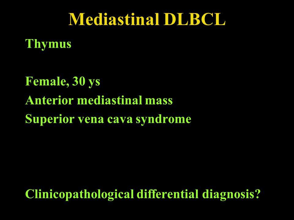 Mediastinal DLBCL Thymus Female, 30 ys Anterior mediastinal mass Superior vena cava syndrome Clinicopathological differential diagnosis?