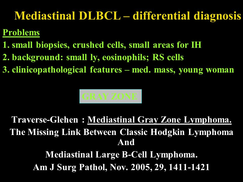 Mediastinal DLBCL – differential diagnosis Problems 1. small biopsies, crushed cells, small areas for IH 2. background: small ly, eosinophils; RS cell