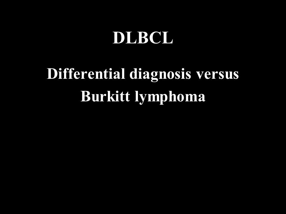 DLBCL Differential diagnosis versus Burkitt lymphoma