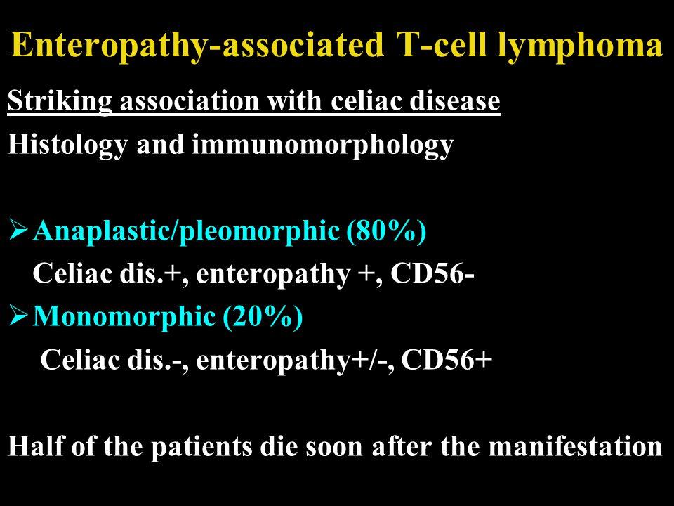 Enteropathy-associated T-cell lymphoma Striking association with celiac disease Histology and immunomorphology  Anaplastic/pleomorphic (80%) Celiac d