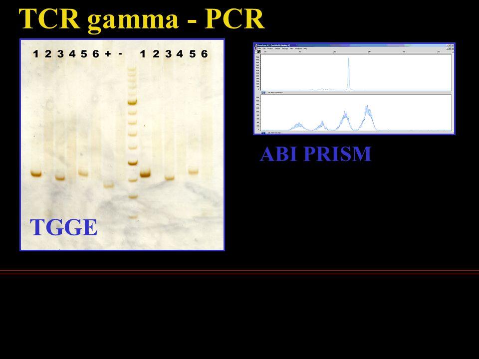 TCR gamma - PCR TGGE ABI PRISM