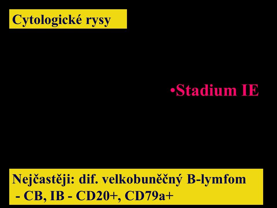 Cytologické rysy Nejčastěji: dif. velkobuněčný B-lymfom - CB, IB - CD20+, CD79a+ Stadium IE