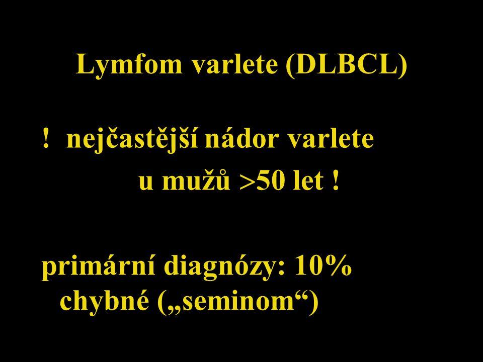 """Lymfom varlete (DLBCL) ! nejčastější nádor varlete u mužů  50 let ! primární diagnózy: 10% chybné (""""seminom"""")"""