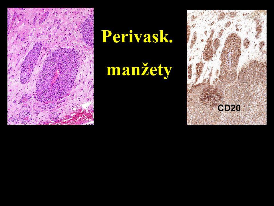 Perivask. manžety RETIKULIN CD20