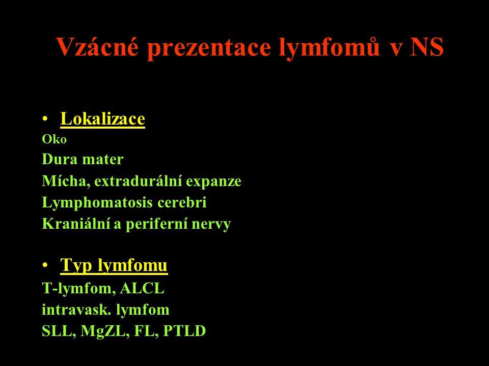 Vzácné prezentace lymfomů v NS Lokalizace Oko Dura mater Mícha, extradurální expanze Lymphomatosis cerebri Kraniální a periferní nervy Typ lymfomu T-l