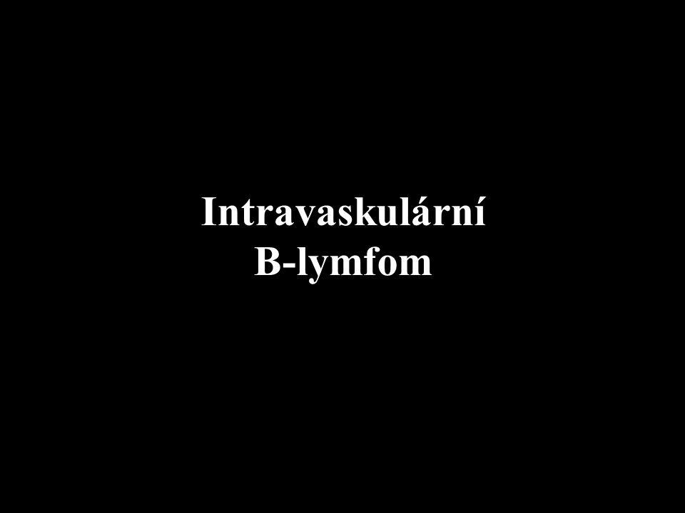 Intravaskulární B-lymfom