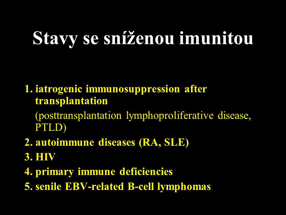 Stavy se sníženou imunitou 1. iatrogenic immunosuppression after transplantation (posttransplantation lymphoproliferative disease, PTLD) 2. autoimmune