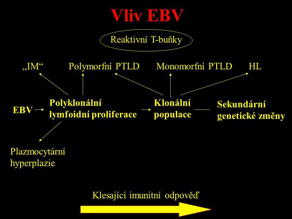 """EBV Polyklonální lymfoidní proliferace Klonální populace Sekundární genetické změny """"IM"""" Plazmocytární hyperplazie Polymorfní PTLDMonomorfní PTLDHL Re"""