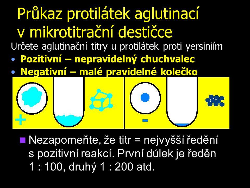 Průkaz protilátek aglutinací v mikrotitrační destičce Určete aglutinační titry u protilátek proti yersiniím Pozitivní – nepravidelný chuchvalec Negati