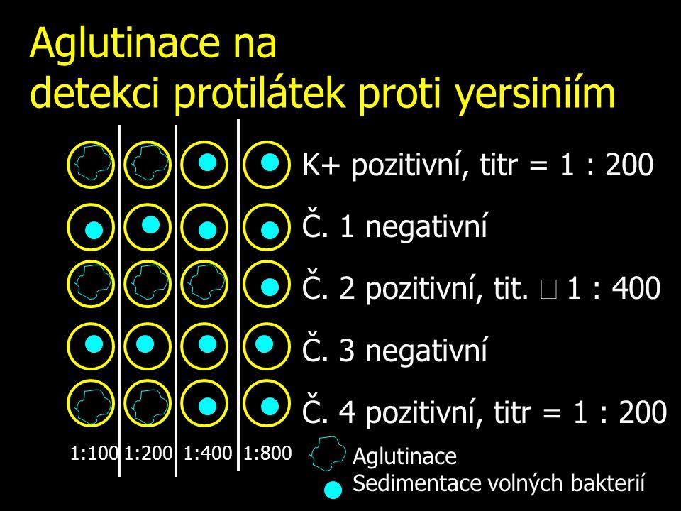 Aglutinace na detekci protilátek proti yersiniím K+ pozitivní, titr = 1 : 200 Č. 1 negativní Č. 2 pozitivní, tit.  1 : 400 Č. 3 negativní Č. 4 poziti