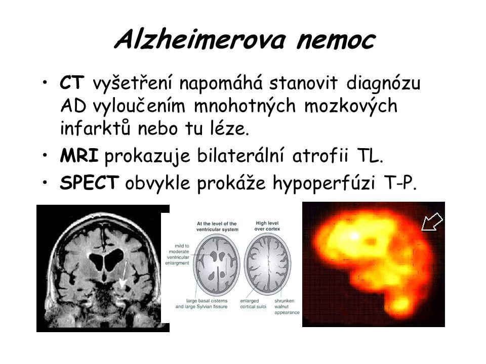 Alzheimerova nemoc CT vyšetření napomáhá stanovit diagnózu AD vyloučením mnohotných mozkových infarktů nebo tu léze.