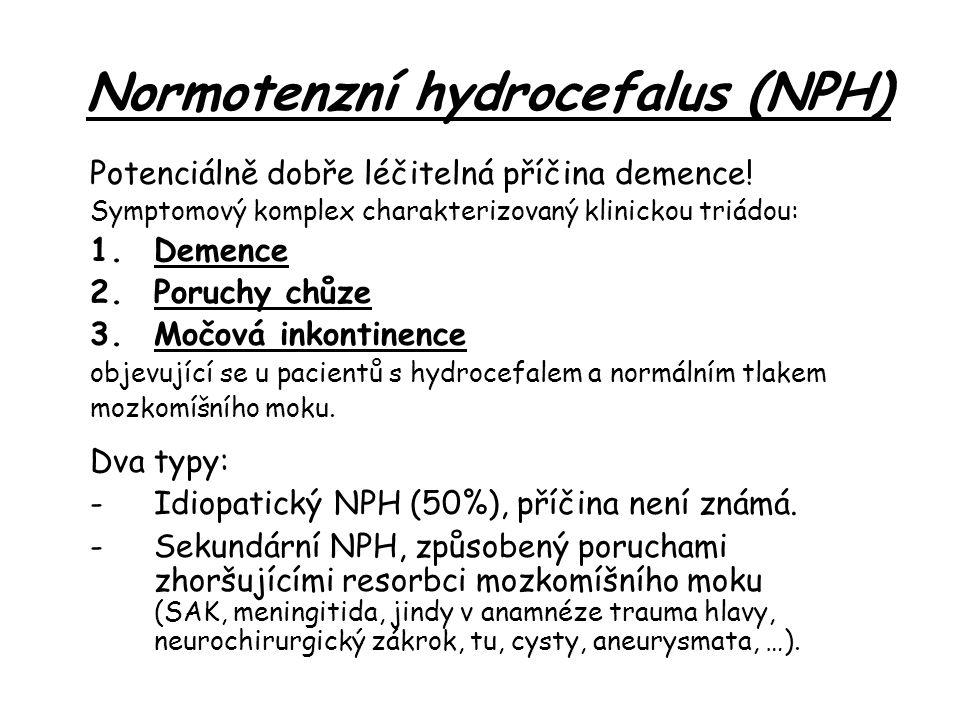 Normotenzní hydrocefalus (NPH) Potenciálně dobře léčitelná příčina demence.